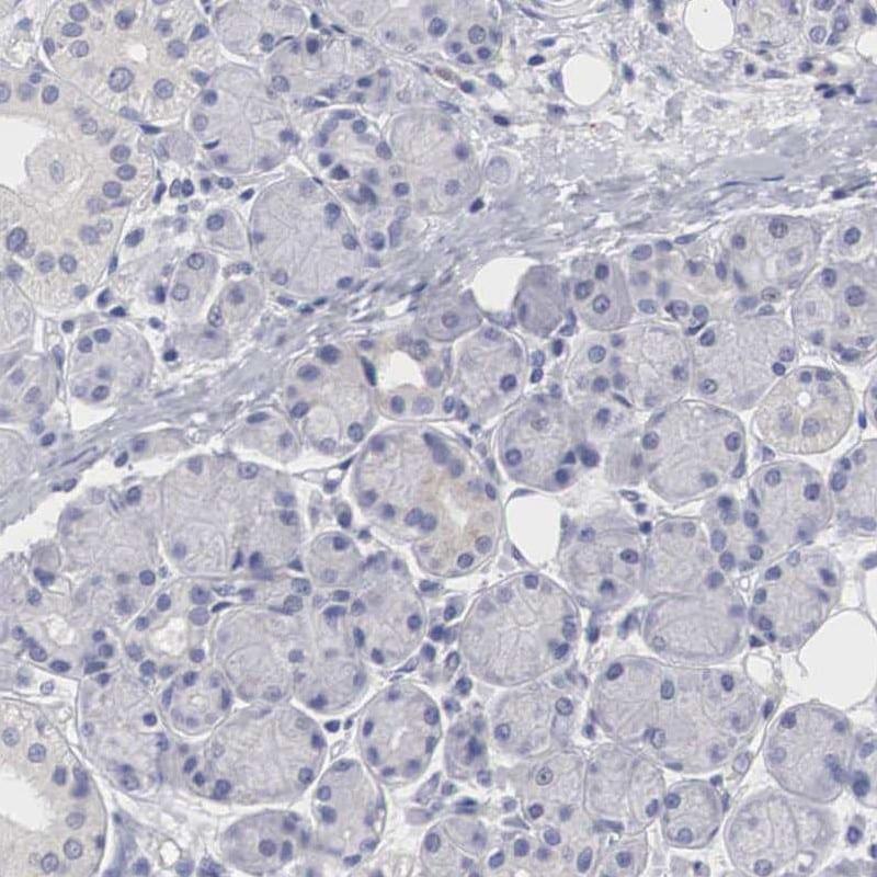 HMOX1 Antibody in Immunohistochemistry (IHC)