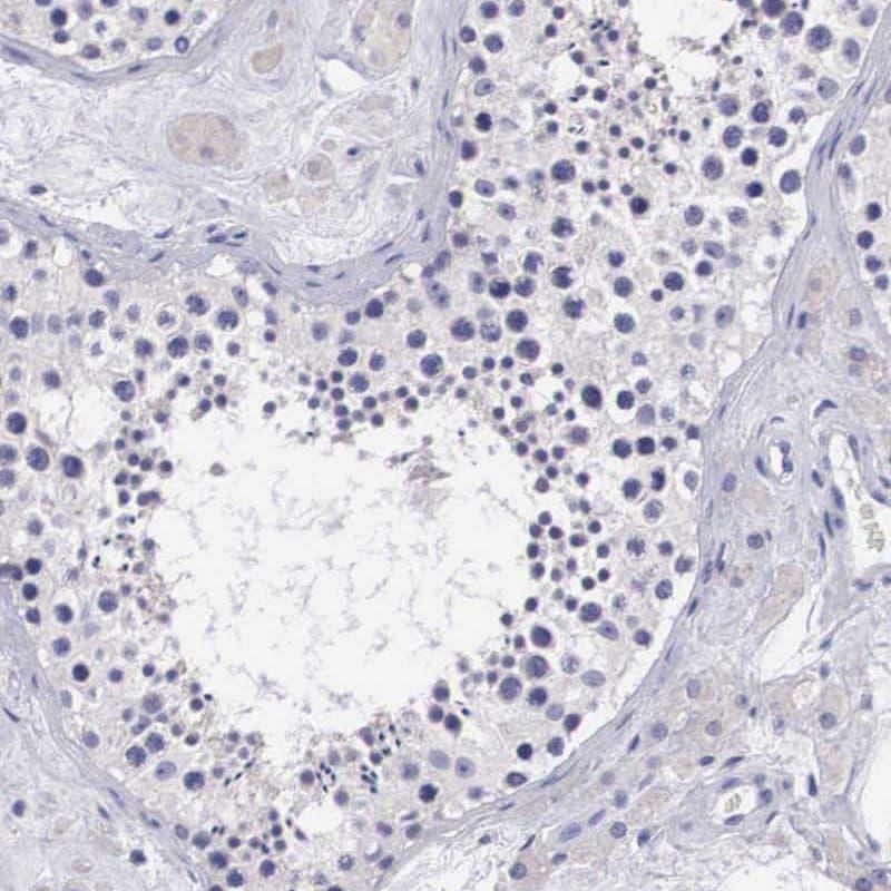 Arginase 2 Antibody in Immunohistochemistry (IHC)
