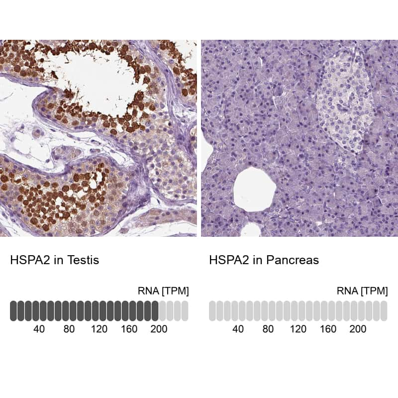 HSPA2 Antibody in Relative expression