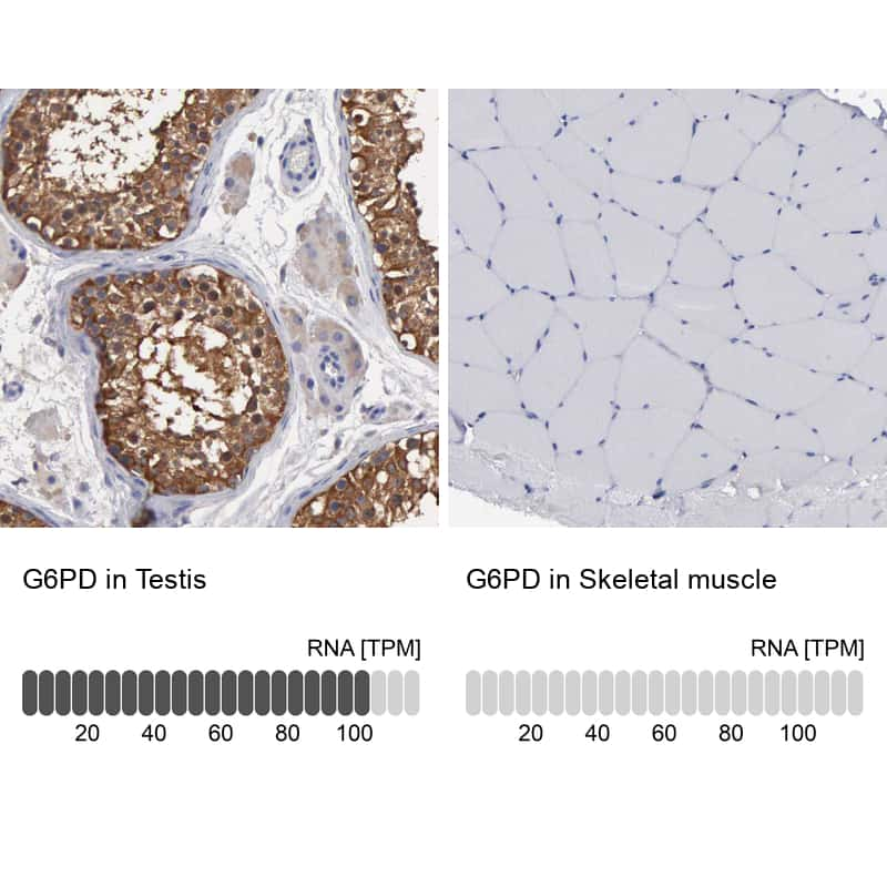 G6PD Antibody in Immunohistochemistry (IHC)