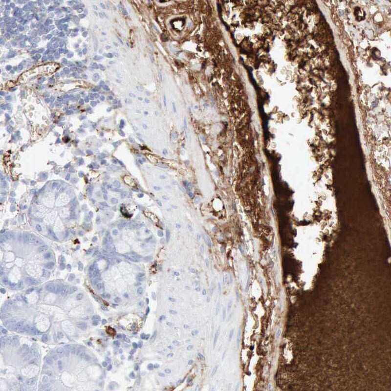 C4BPA Antibody in Immunohistochemistry (IHC)