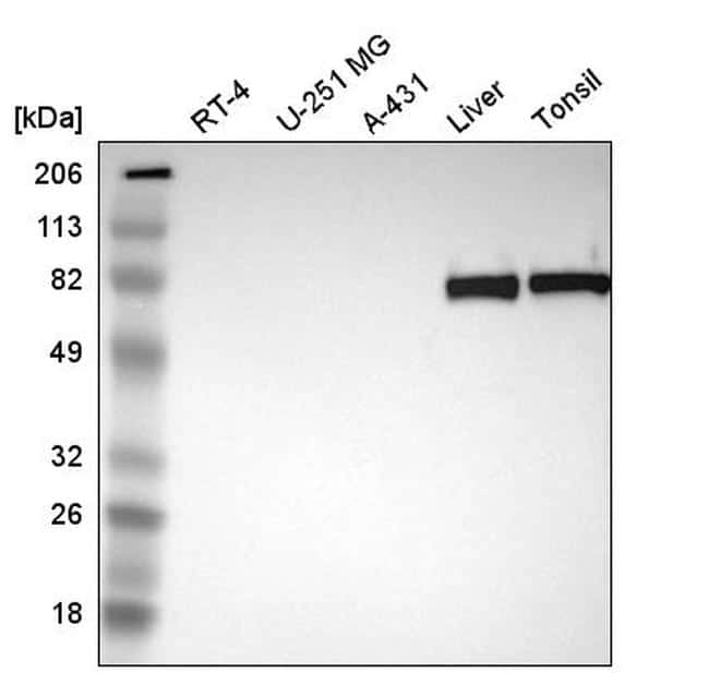 C4BPA Antibody in Western Blot (WB)
