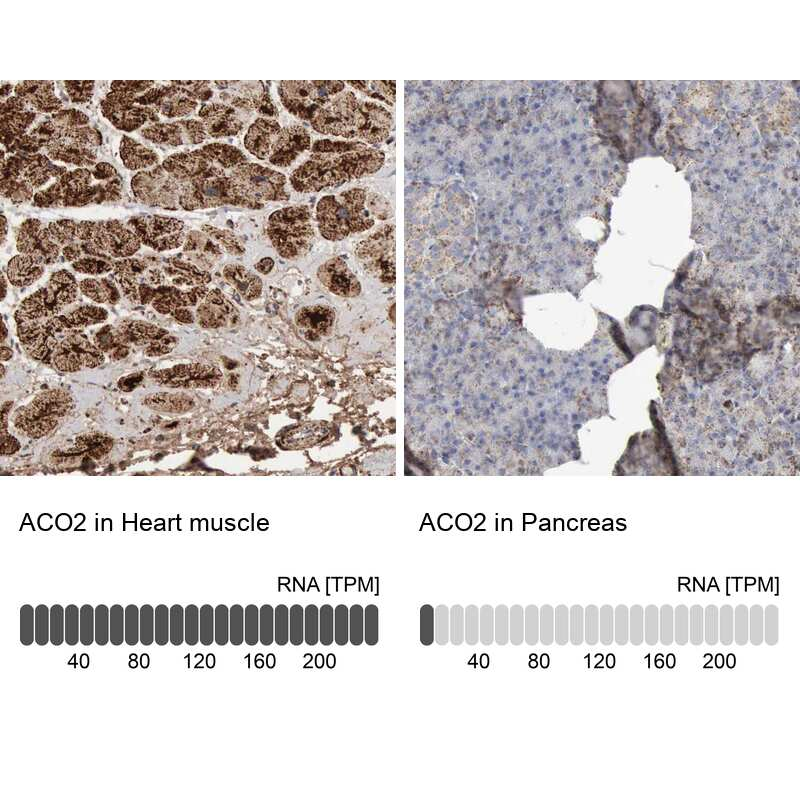 Aconitase 2 Antibody in Immunohistochemistry (IHC)