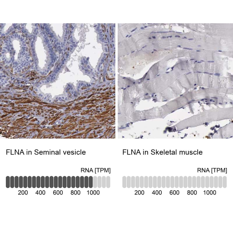 Filamin A Antibody in Relative expression