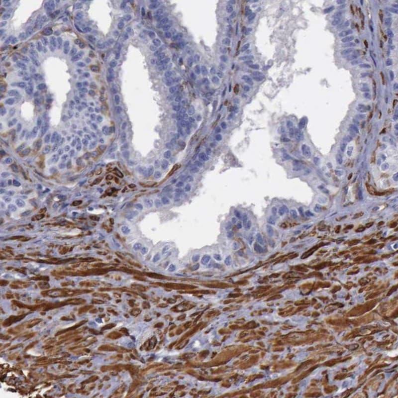 Filamin A Antibody in Immunohistochemistry (IHC)