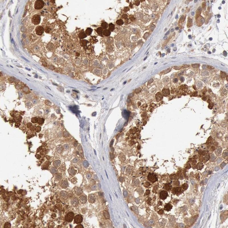 HDJ2 Antibody in Immunohistochemistry (IHC)