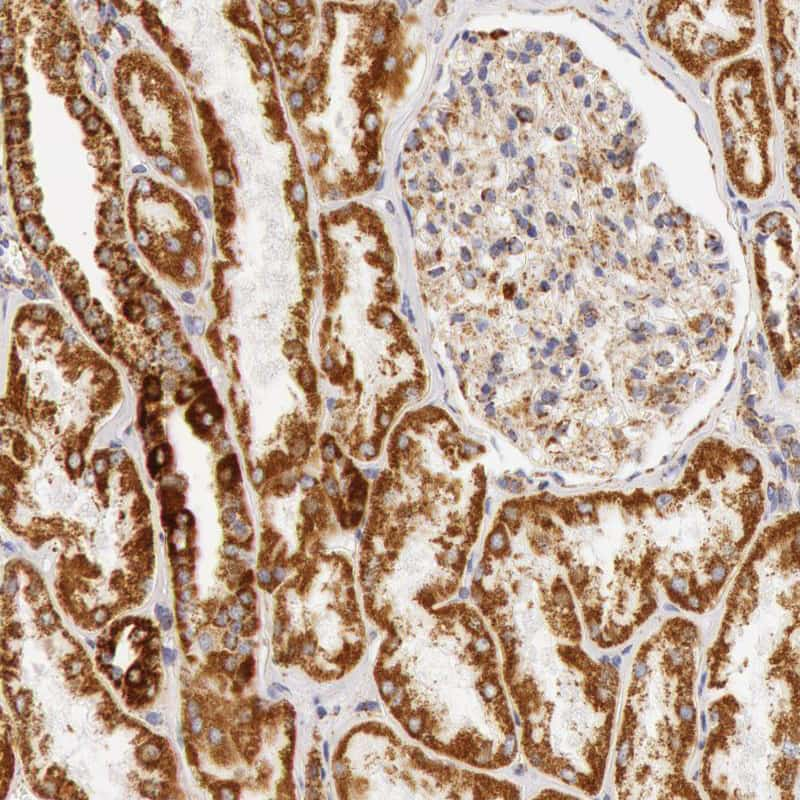 ATP Synthase beta Antibody in Immunohistochemistry (IHC)