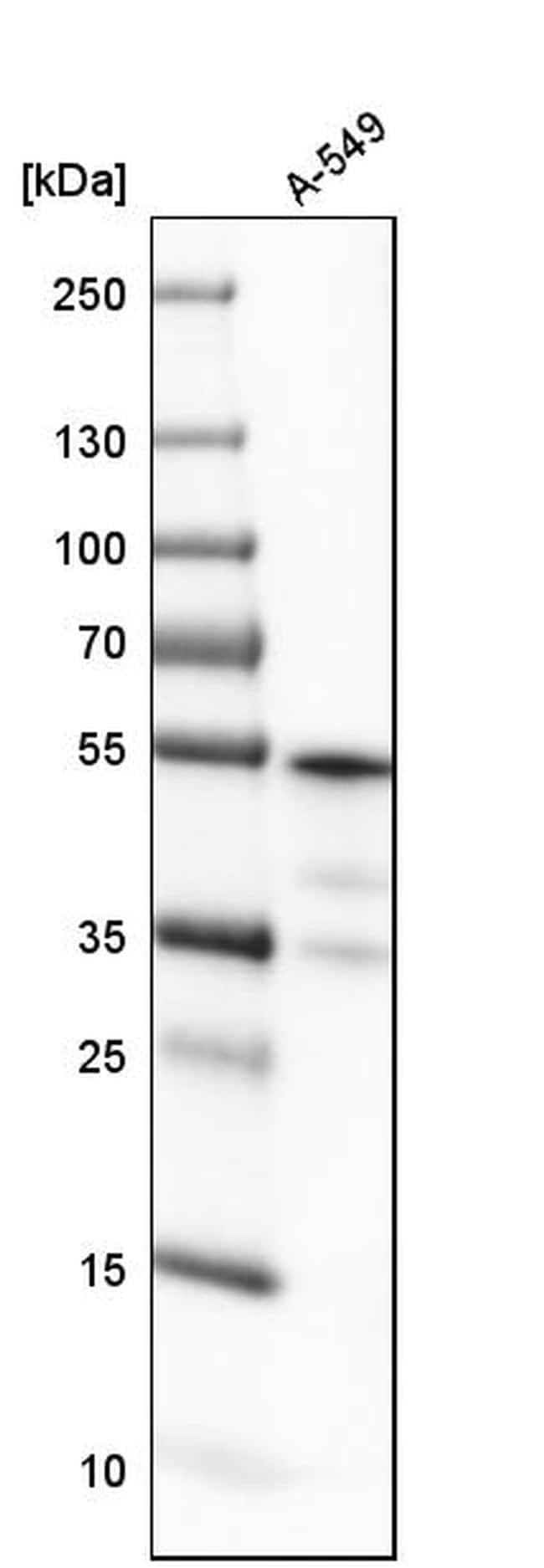 ATP Synthase beta Antibody in Western Blot (WB)