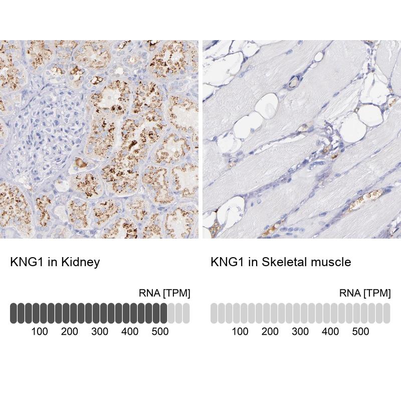 Kininogen 1 Antibody in Immunohistochemistry (IHC)