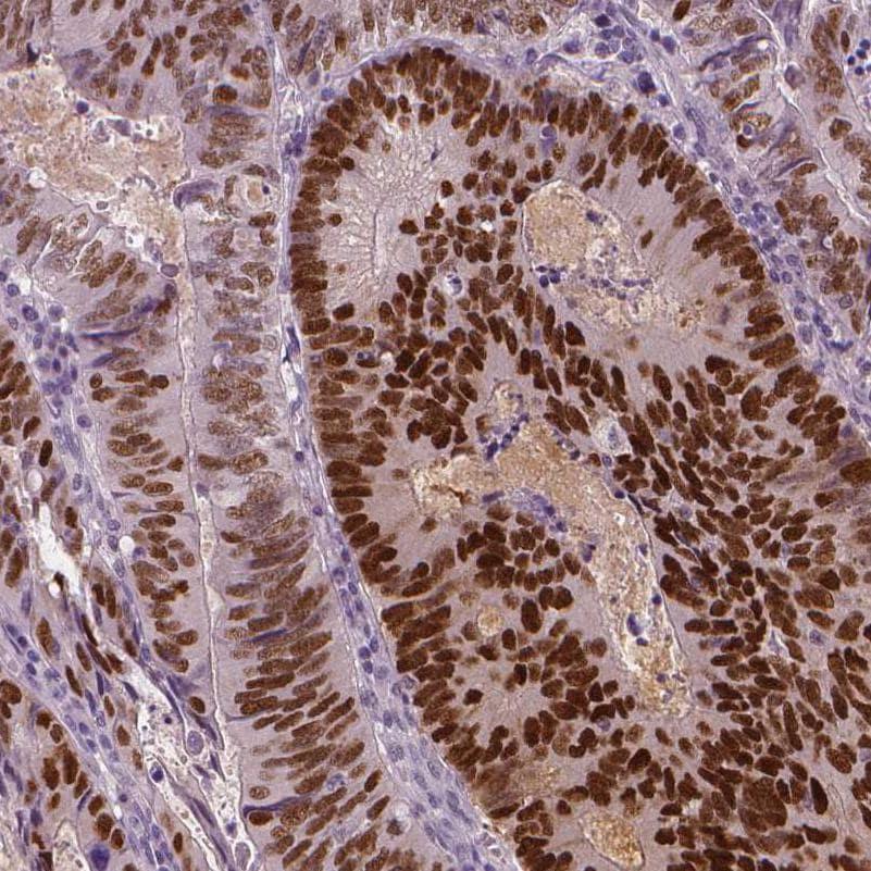 SOX9 Antibody in Immunohistochemistry (IHC)
