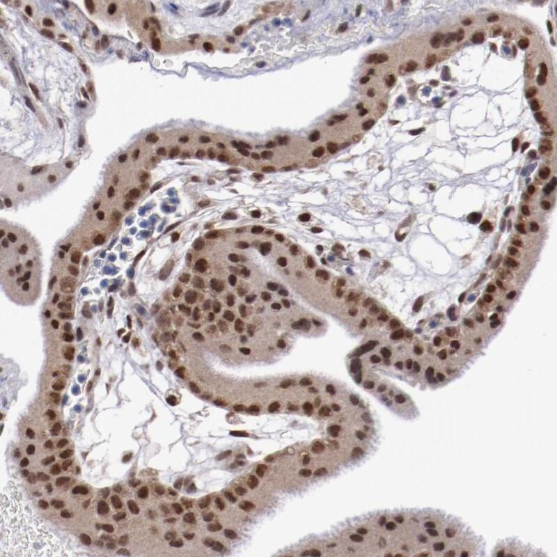 HIF-1 beta Antibody in Immunohistochemistry (IHC)