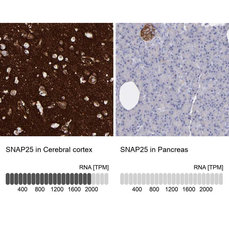 SNAP25 Antibody in Immunohistochemistry (IHC)