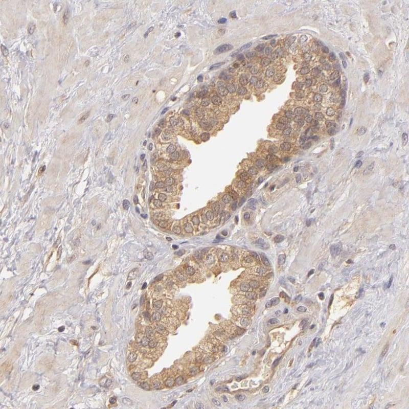 PKC delta Antibody in Immunohistochemistry (IHC)