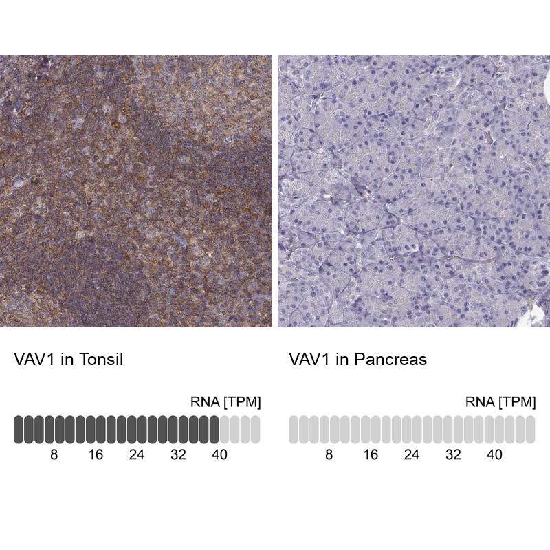 VAV1 Antibody in Immunohistochemistry (IHC)