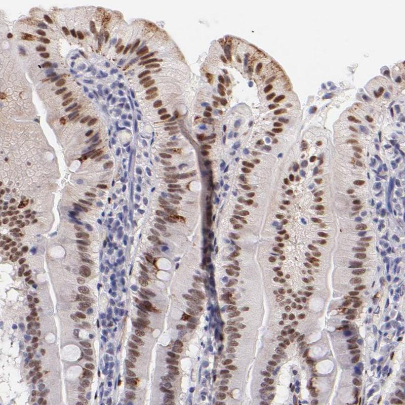SOX6 Antibody in Immunohistochemistry (IHC)
