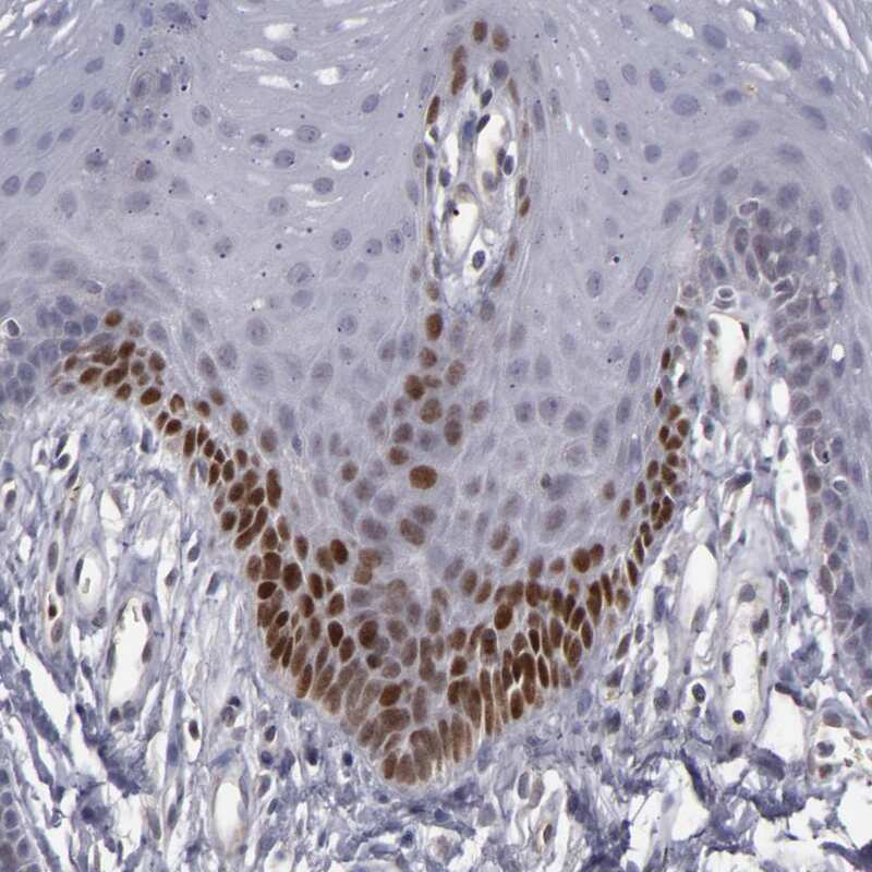 LEF1 Antibody in Immunohistochemistry (IHC)