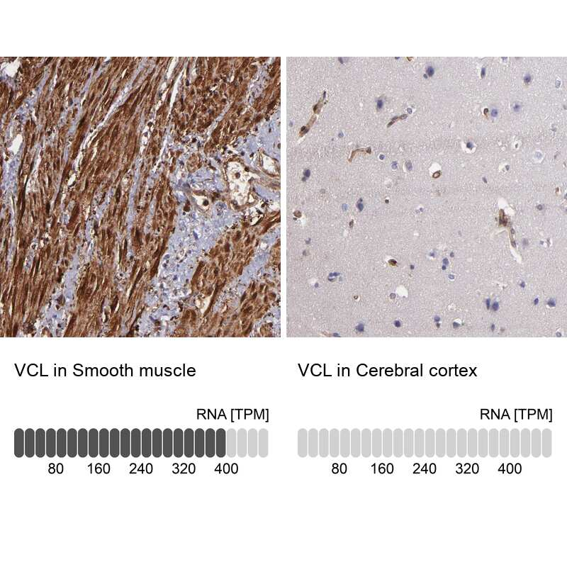 Vinculin Antibody in Relative expression