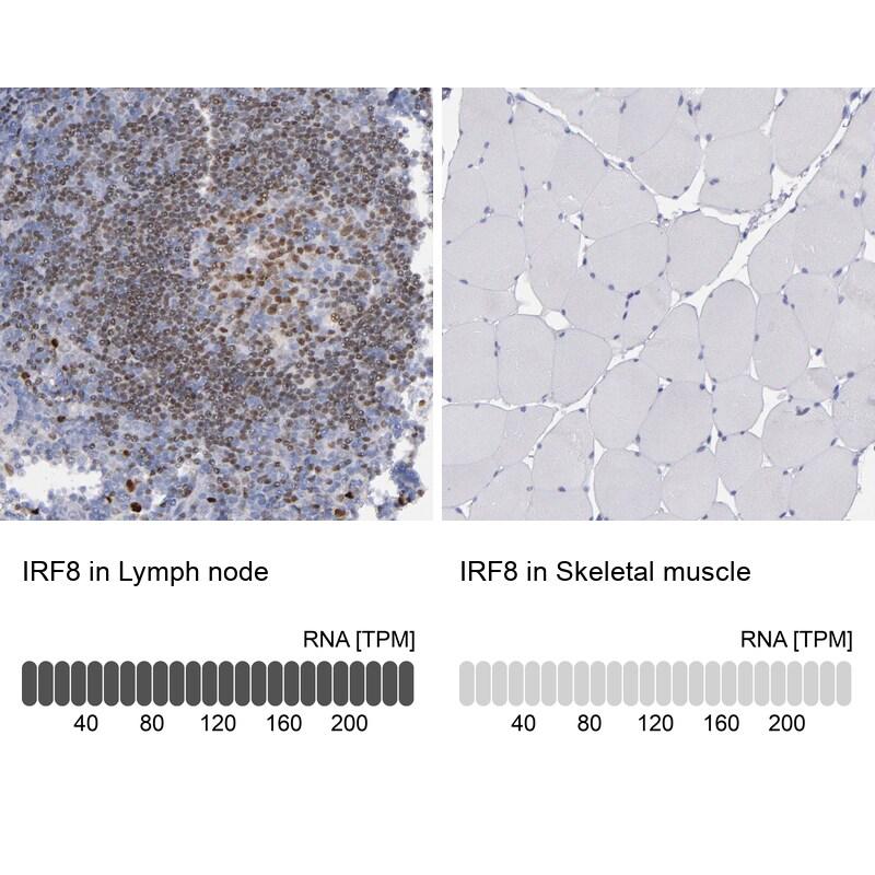 IRF8 Antibody in Immunohistochemistry (IHC)