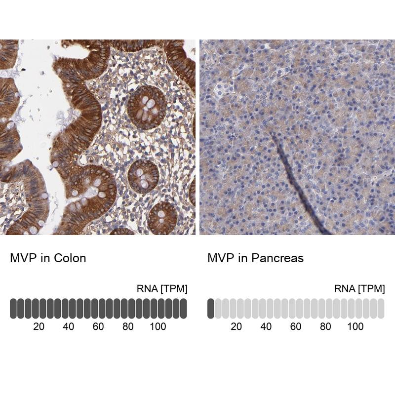 MVP Antibody in Immunohistochemistry (IHC)