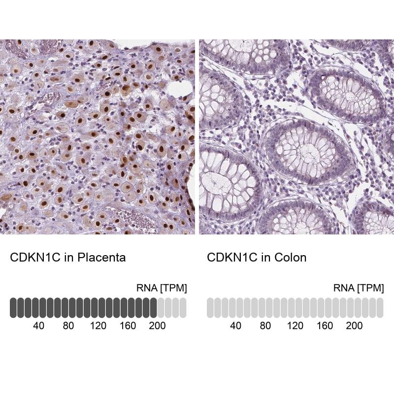 p57 Kip2 Antibody in Immunohistochemistry (IHC)