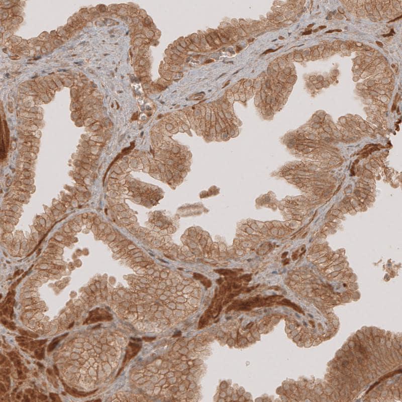 NG2 Antibody in Immunohistochemistry (IHC)