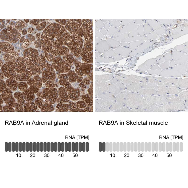 RAB9 Antibody in Relative expression