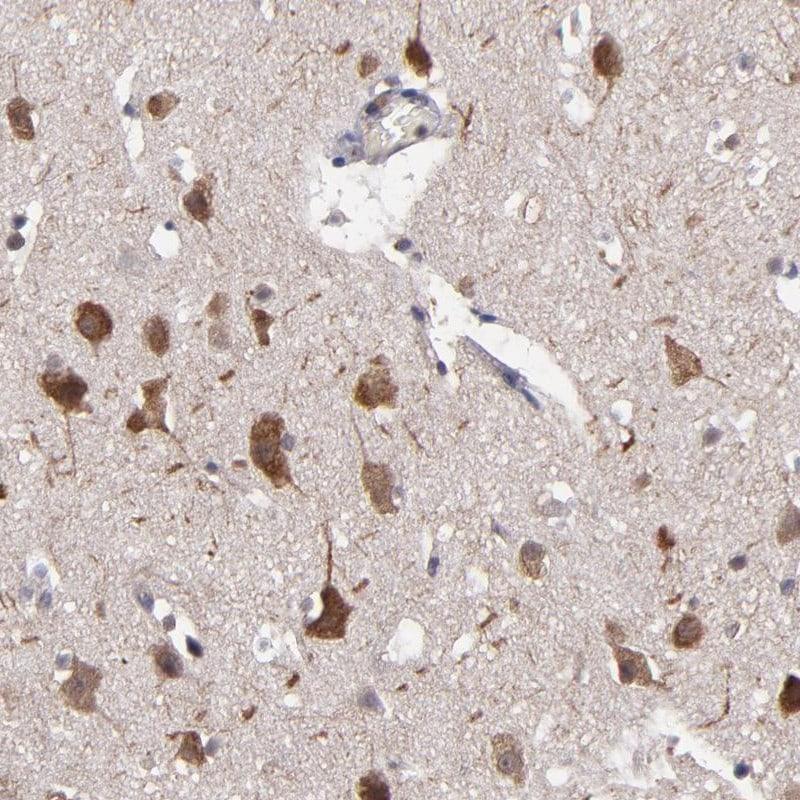 NF2 Antibody in Immunohistochemistry (IHC)