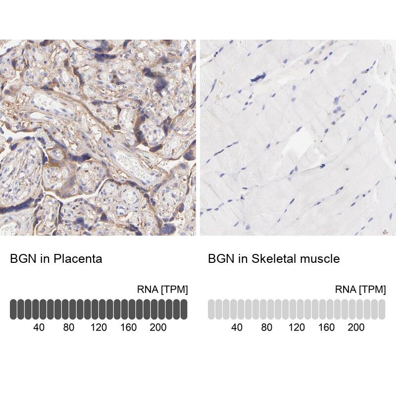 Biglycan Antibody in Immunohistochemistry (IHC)