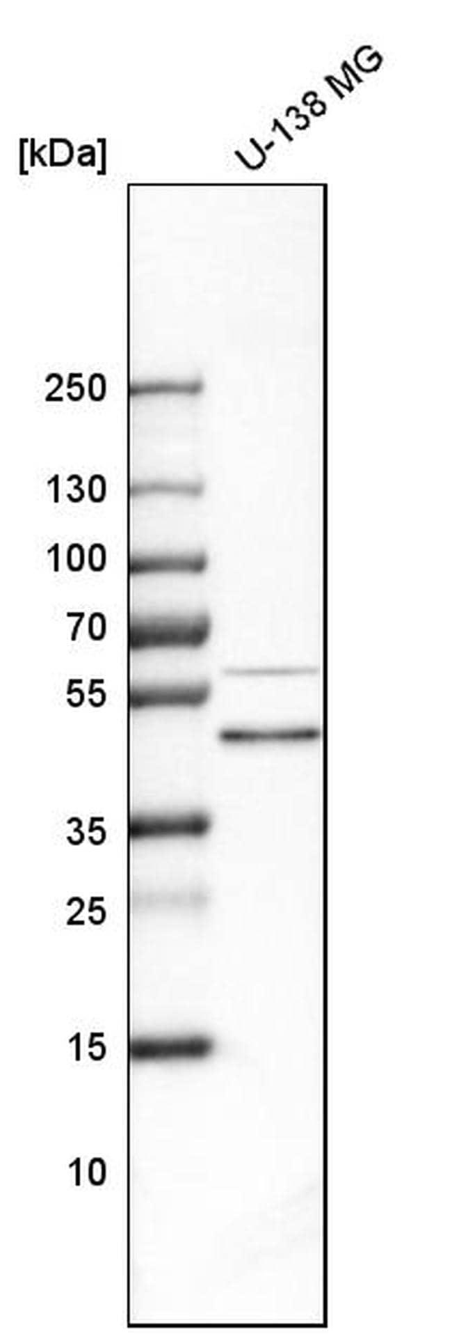Biglycan Antibody in Western Blot (WB)