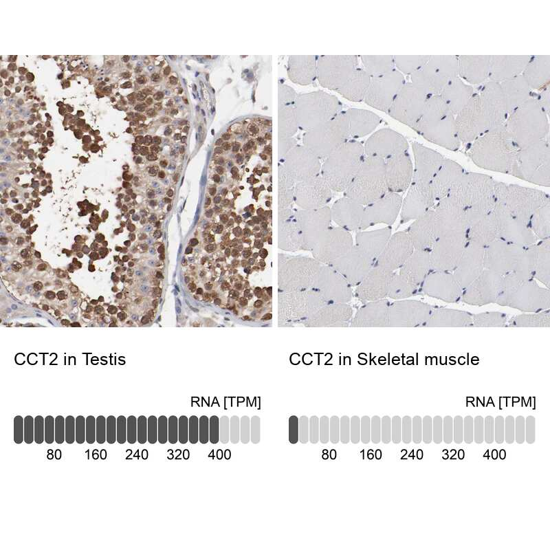 TCP-1 beta Antibody in Immunohistochemistry (IHC)