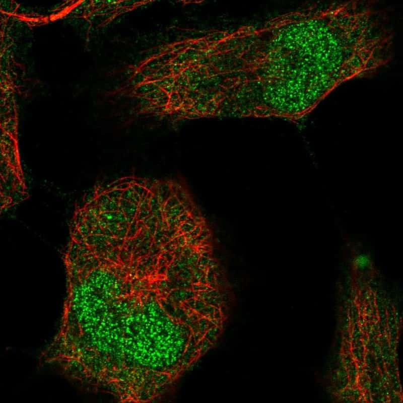 Brachyury Antibody in Immunofluorescence (IF)