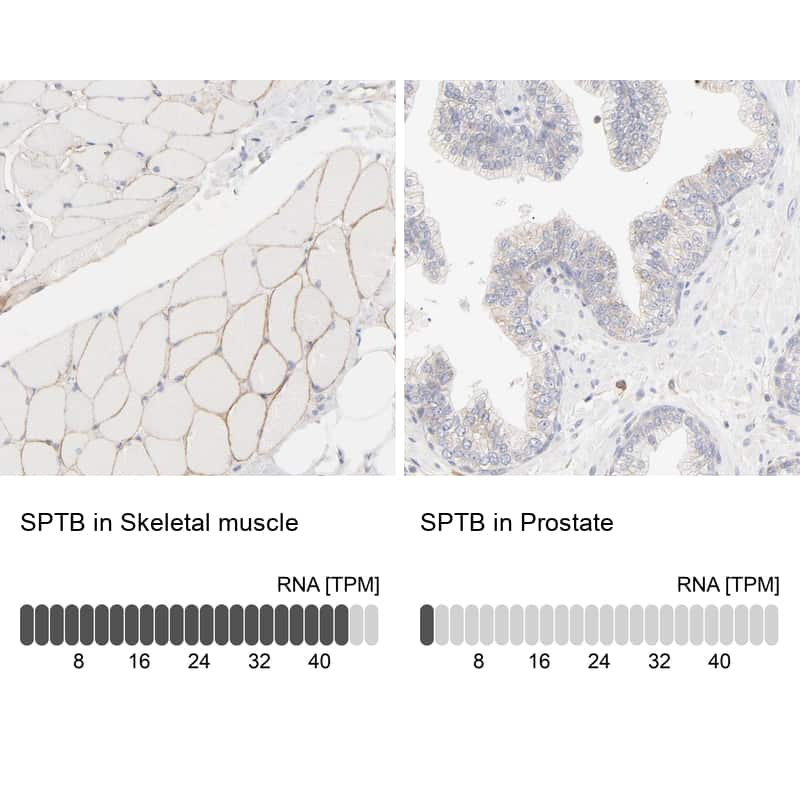 SPTBN1 Antibody in Relative expression