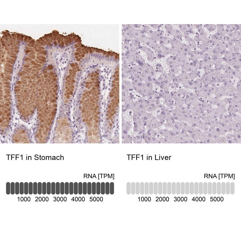TFF1 Antibody in Immunohistochemistry (IHC)