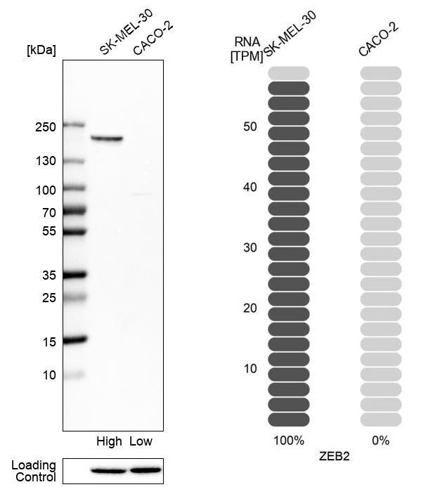 ZEB2 Antibody in Relative expression
