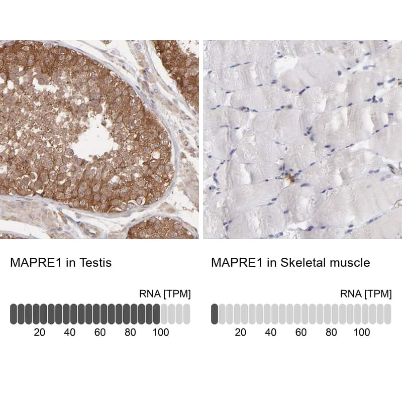 EB1 Antibody in Immunohistochemistry (IHC)