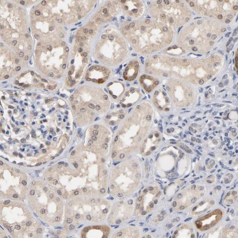 MIF Antibody in Immunohistochemistry (IHC)