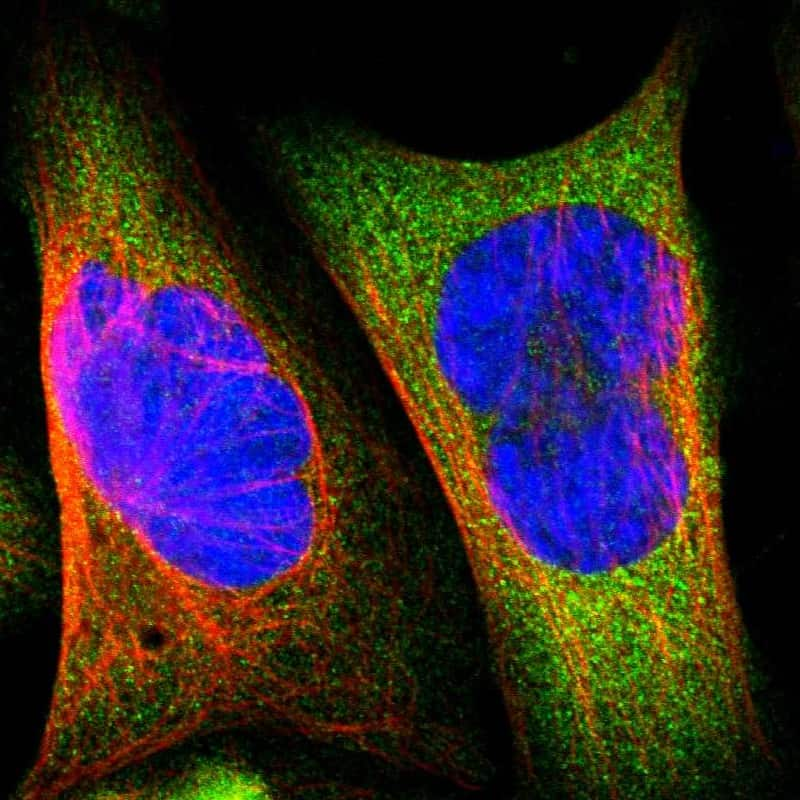 BIN1 Antibody in Immunocytochemistry (ICC/IF)