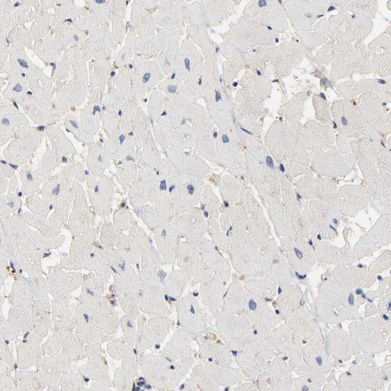 BIN1 Antibody in Immunohistochemistry (IHC)