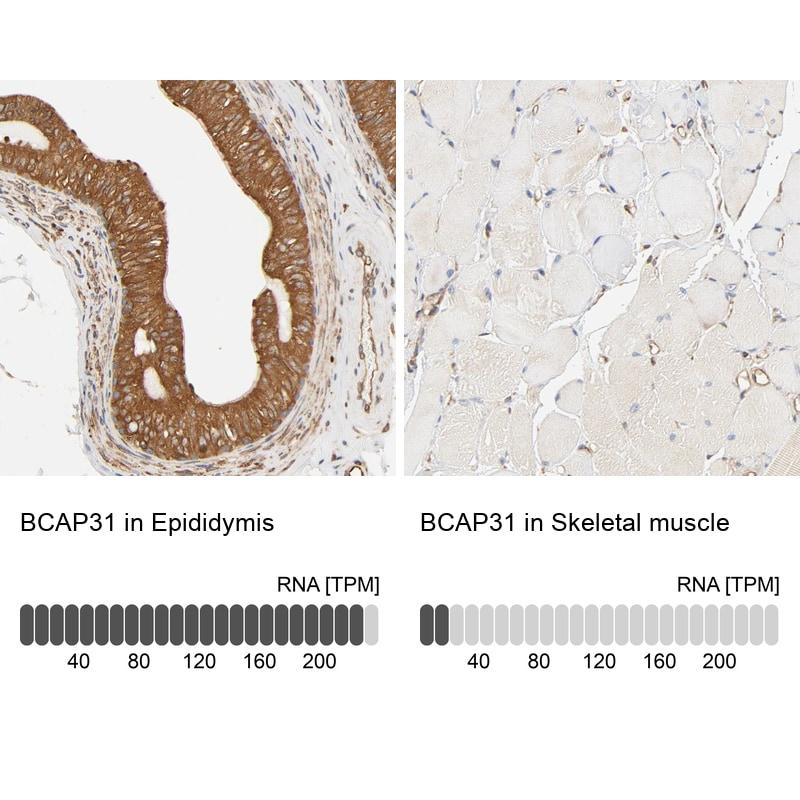 BAP31 Antibody in Relative expression