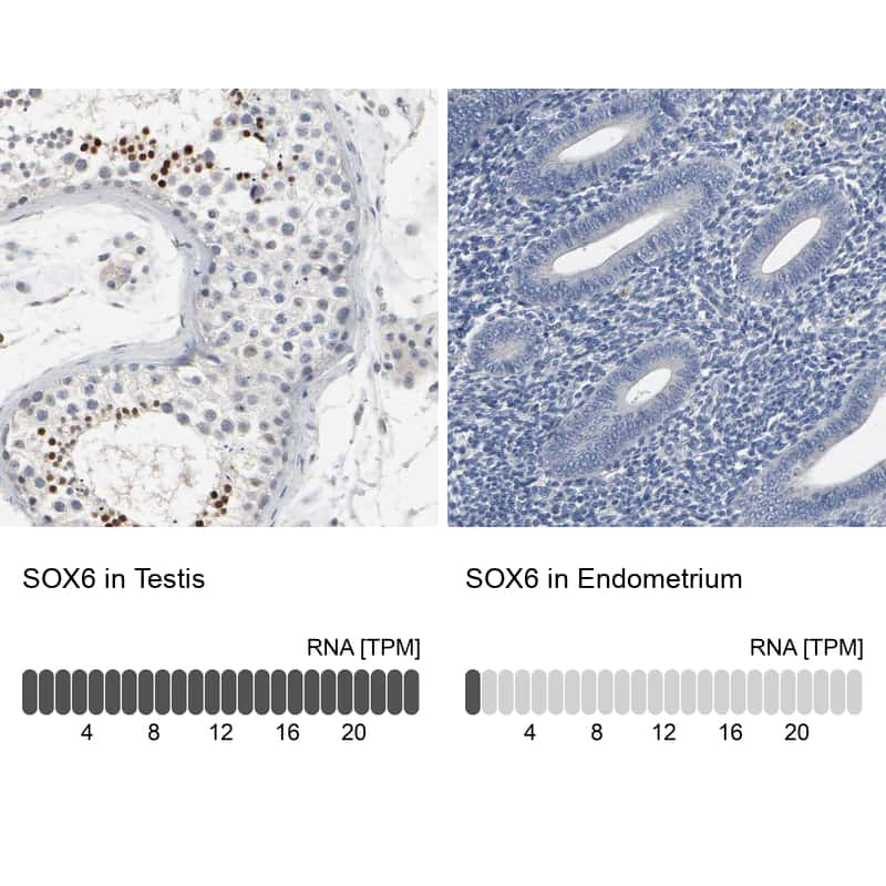 SOX6 Antibody in Relative expression