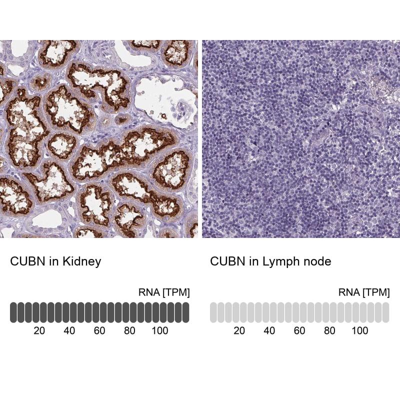 CUBN Antibody in Immunohistochemistry (IHC)