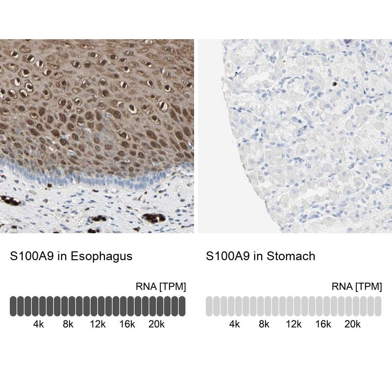 S100A9 Antibody in Immunohistochemistry (IHC)