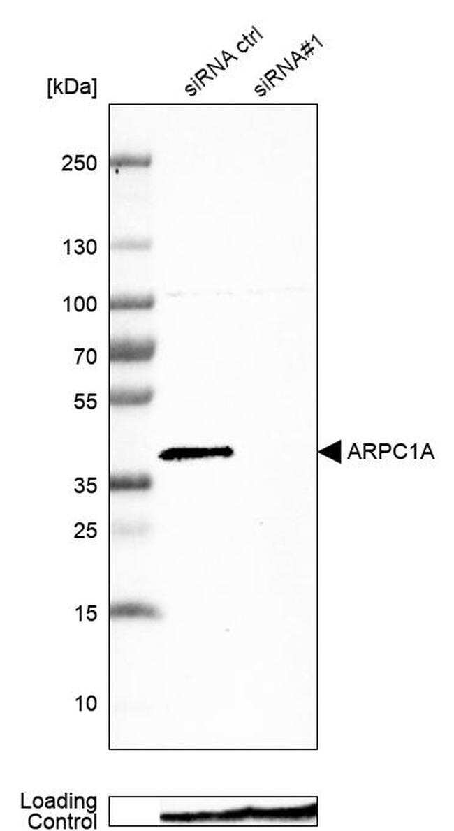 ARPC1A Antibody in Western Blot (WB)
