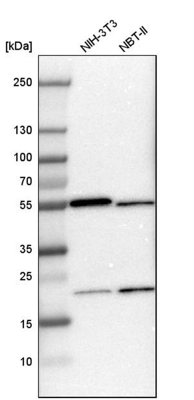 RhoGAP Antibody in Western Blot (WB)