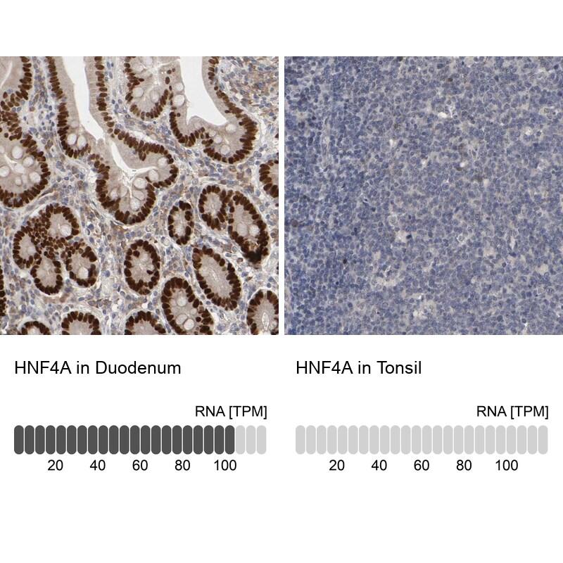 HNF4A Antibody in Immunohistochemistry (IHC)