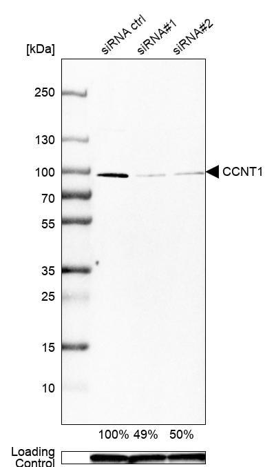 Cyclin T1 Antibody in Knockdown