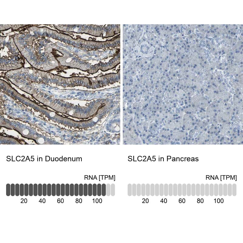 SLC2A5 Antibody in Immunohistochemistry (IHC)