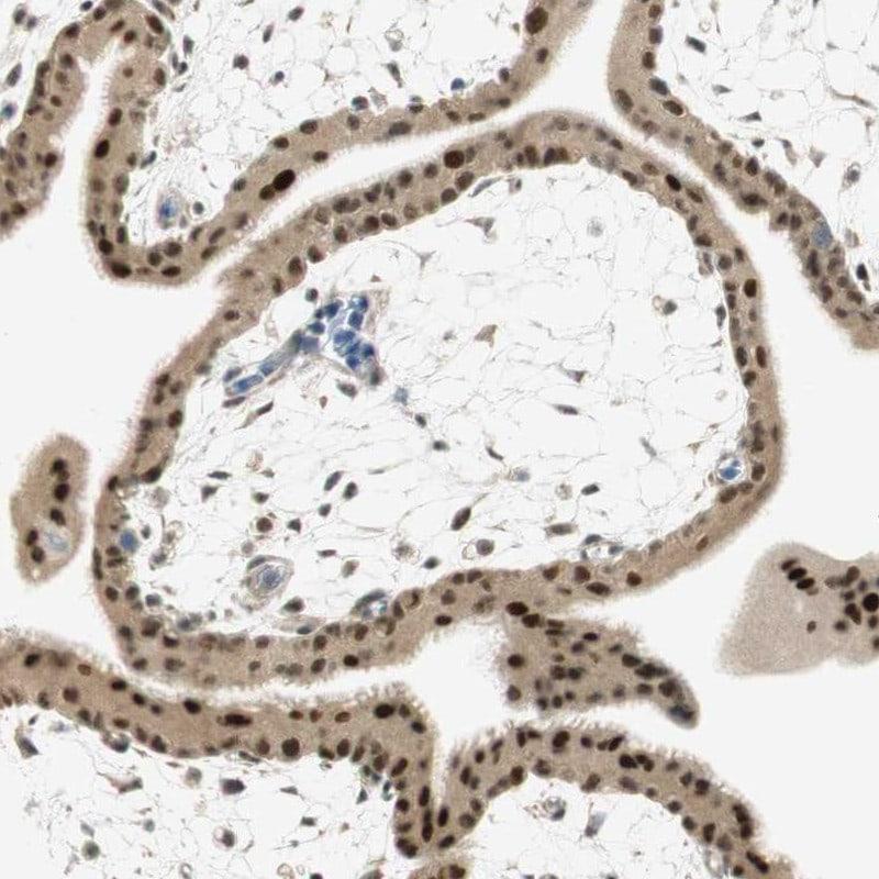MSX2 Antibody in Immunohistochemistry (IHC)