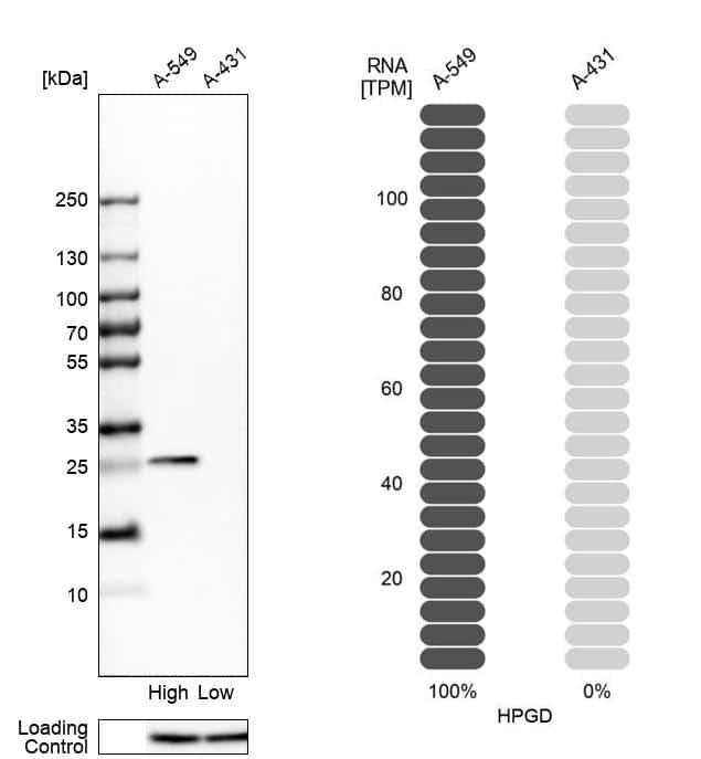 15-PGDH Antibody in Relative expression