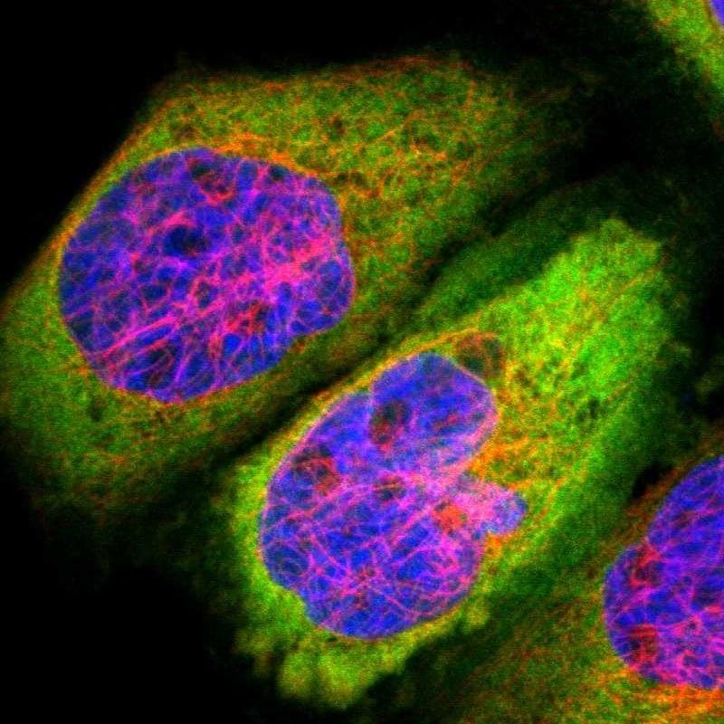 Fascin Antibody in Immunofluorescence (IF)